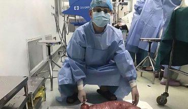 Chirurdzy rozcięli brzuch tego 22-latka i wyciągnęli z jelit coś, co gromadził przez lata! To cud, że żyje!