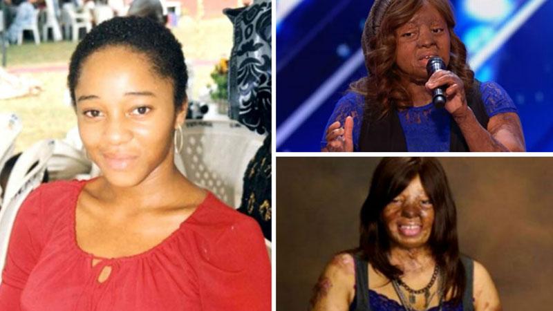 """Kechi przeżyła katastrofę samolotu i przeszła ponad 100 operacji. Teraz w programie """"Mam talent"""" udowadnia, że nigdy nie można się poddawać"""