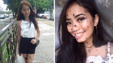 Drwili z niej i nazywali potworem ze względu na czarne znamiona, którymi usiana jest jej skóra. Teraz ma szansę zostać nową Miss Universe!
