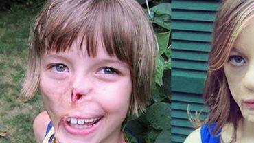 """""""Nieszkodliwy"""" szop zmasakrował jej twarz. Po latach cierpienia i wyśmiewania wreszcie może z odwagą spojrzeć w lustro!"""