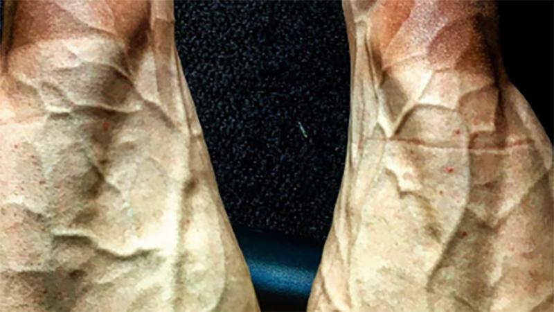 Tak wyglądają nogi kolarza po jednym z etapów Tour de France. Zastanów się, czy chcesz to oglądać!