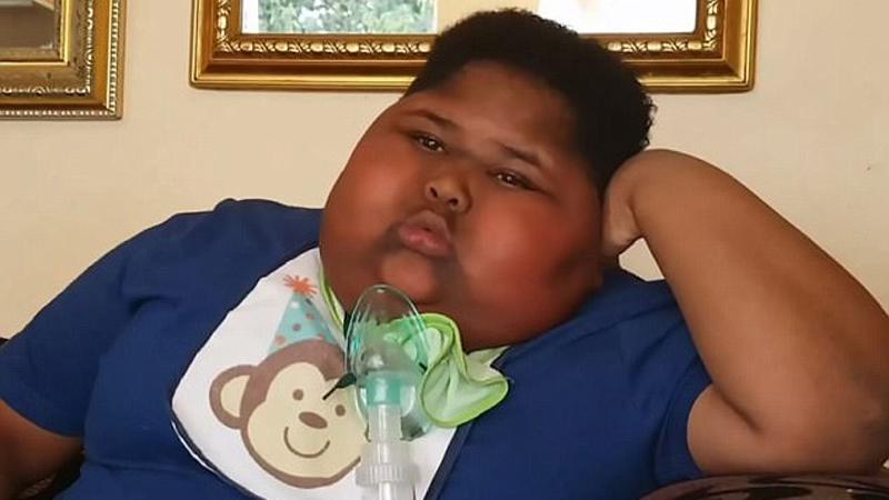 Ten 10-latek jest ciągle głodny. Kiedy nie dostaje nic innego, zjada papier toaletowy! Waży już 90 kilogramów!