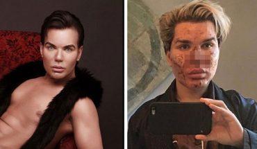 Pamiętacie Rodrigo, mężczyznę który chciał zostać żywym Kenem? Aktualnie jego twarz nie przypomina oblicza lalki, ponieważ… rozpada się na kawałki!