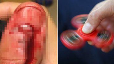 Fidget spinner eksplodował i uszkodził temu chłopakowi palec! Teraz ostrzega wszystkich przed niebezpieczeństwem