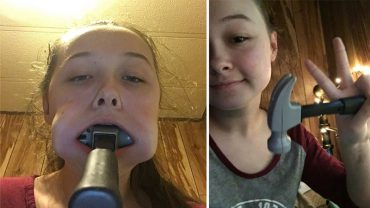 14-latka przyjęła wyzwanie od koleżanki i wetknęła sobie młotek w usta. Kiedy narzędzie utknęło, dziewczynie przestało być do śmiechu