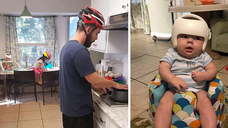 Gdy okazało się, że ich synek musi nosić kask korekcyjny, jego rodzice wpadli na wspaniały pomysł