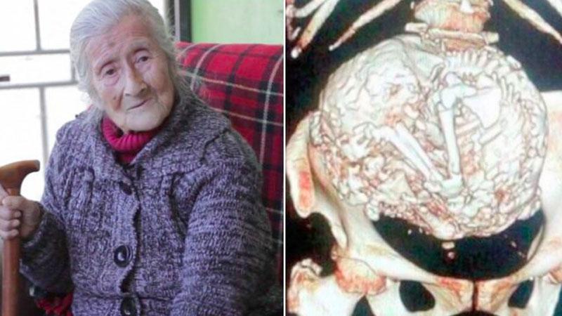 Przez 60 lat żyła ze świadomością, że w jej żołądku rozwija się guz. Była zdruzgotana, kiedy dowiedziała się, czym jest naprawdę!