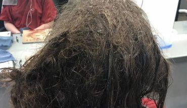 13 godzin pracowała, by rozczesać nastolatce koszmarnie zlepione włosy. Kiedy poznała jej historię – nie żałowała ani minuty