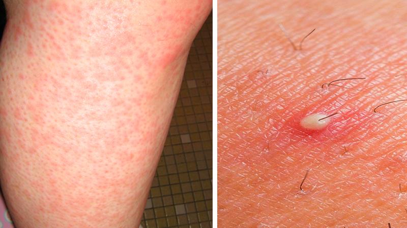 7 rażących błędów podczas golenia nóg! Podobno każda kobieta popełnia minimum 3 z nich!