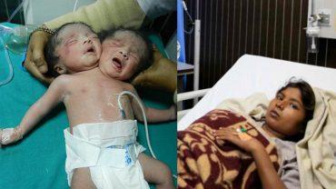 W Indiach urodziły się dwugłowe bliźniaki, rodzice nie mieli pojęcia o mnogiej ciąży z powikłaniami, bo matka nie miała sił na badania
