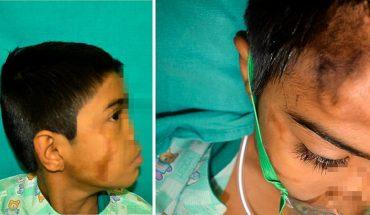 Gdy na czole wyrósł mu drugi nos, chłopiec nie rozpaczał, lecz uściskał lekarzy. Kiedy poznasz jego historię, ta reakcja przestanie być dla Ciebie dziwna