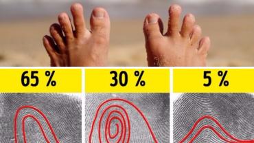 13 osobliwości ludzkiego ciała, które występują tylko u paru procent populacji. Sprawdź, czy posiadasz którąś z tych cech