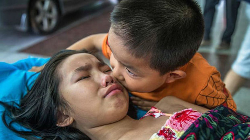 Zdjęcia tego rodzeństwa chwytają za serce. To cudowny dowód na to, że nawet w kruchym ciele, może się mieścić wielki duch