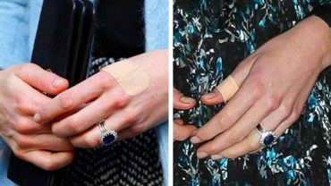 Paparazzi odkryli tajemnicę księżnej Kate! Zastanawialiście się, dlaczego tak często ma plastry na dłoniach?