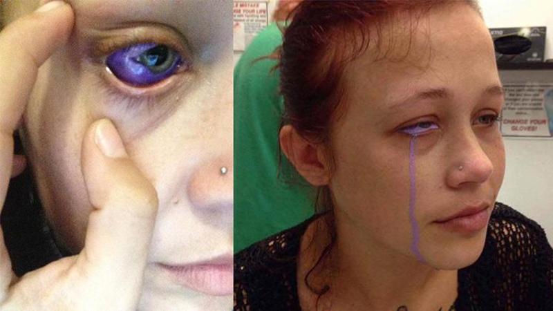 """Catt chciała mieć """"oczy jak fiołki"""", teraz marzy o tym, by nie oślepnąć. To ostrzeżenie dla każdego, kto myśli o podobnych modyfikacjach"""
