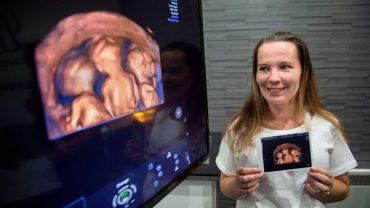 Miała już 4 dzieci, zdecydowała się na jeszcze jedno. Kiedy lekarz pokazał jej badania, nie wierzyła, szansa na to, co się stało wynosiła 160 000:1!