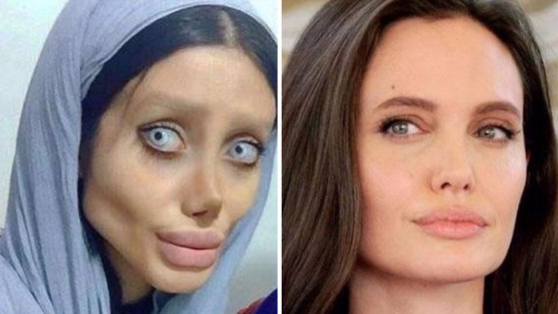 Przeszła ponad 50 operacji plastycznych, by upodobnić się do swojej idolki Angeliny Jolie. Sami oceńcie, czy poświecenie było warte efektu