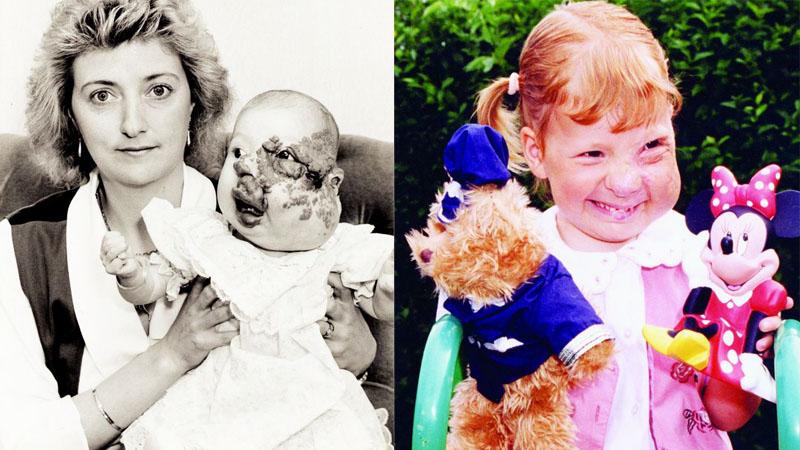 Kiedy się urodziła, nie sądzono, że będzie miała normalne życie. Dzięki operacjom nie tylko żyje jak każdy, ma męża i już niedługo sama zostanie mamą!
