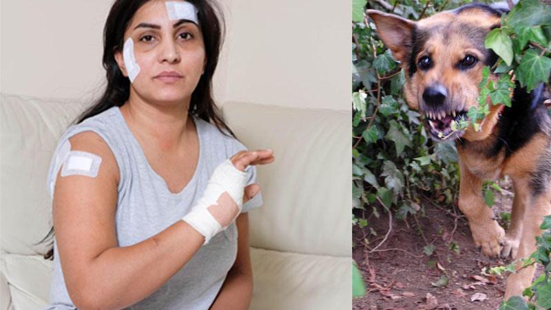 Zaatakował ją pies, miała 70 szwów, a kiedy zadzwoniła do szefa ten miał tylko jedno pytanie! Z pewnością nie takiego potraktowania się spodziewała