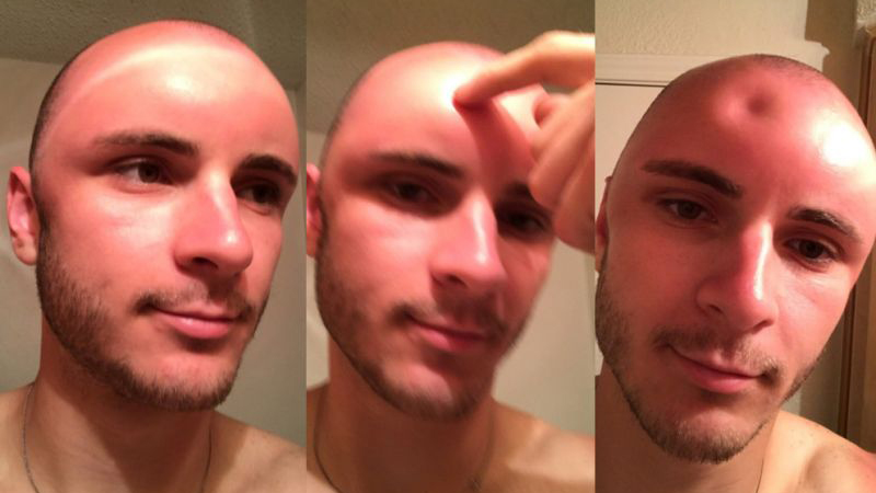 Nie bez przyczyny skóra tego mężczyzny jest taka wiotka. To zdjęcie powinno być ostrzeżeniem dla miłośników opalania