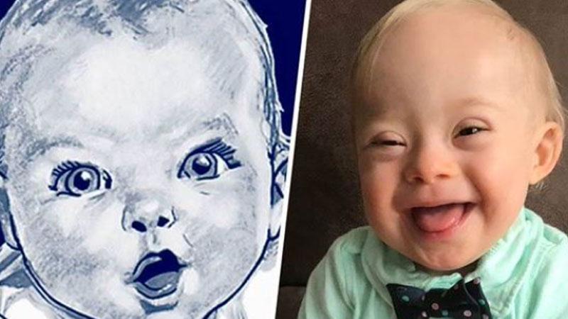 Firma Gerber ogłosiła konkursna nową twarz ich produktów i ku zaskoczeniu wszystkichwygrał chłopiec… z Zespołem Downa!