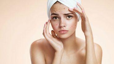 Wskazówki, jak zadbać o skórę w obliczu zmian hormonalnych zachodzącychkażdej fazie cyklu miesiączkowego