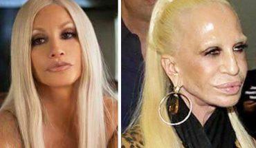 18 znanych ludzi, którzy zniszczyli sobie twarz operacjami plastycznymi! Już nie przypominają siebie sprzed lat