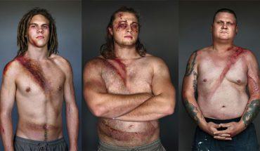Ofiary wypadków samochodowych z dumą pokazują swe rany. Wszystkie ich zdjęcia łączy ważny szczegół
