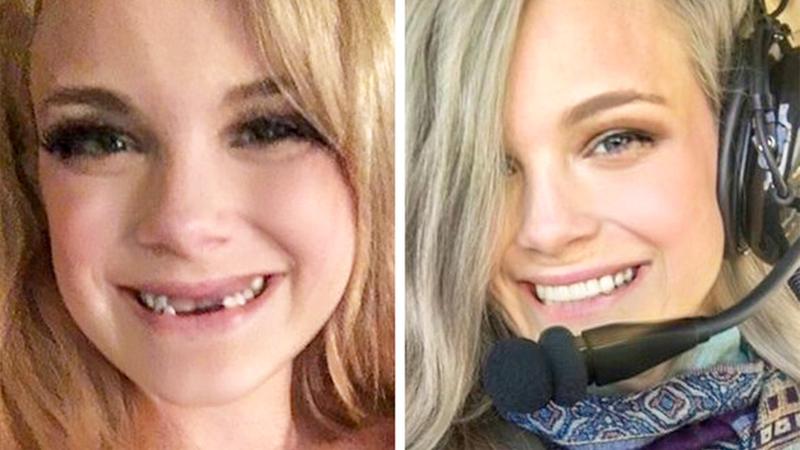 16 osób, które spektakularnie zmieniły swój wygląd i wygrały! Szczęka opada