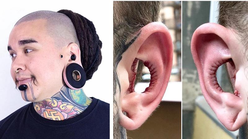 """""""Artysta od modyfikacji ciała"""" usunął małżowinę uszną. Chciał wyglądać oryginalnie, ale co ze słuchem?"""