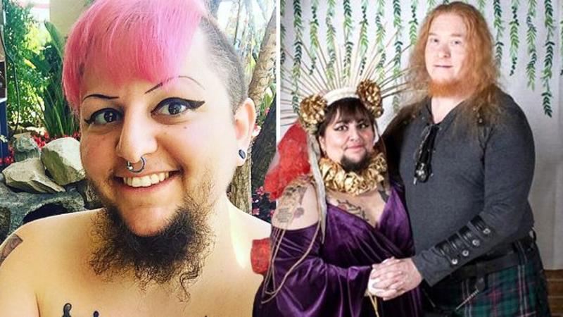 Kobieta z brodą znalazła męża! Padniesz, gdy dowiesz się, kim jest ten mężczyzna