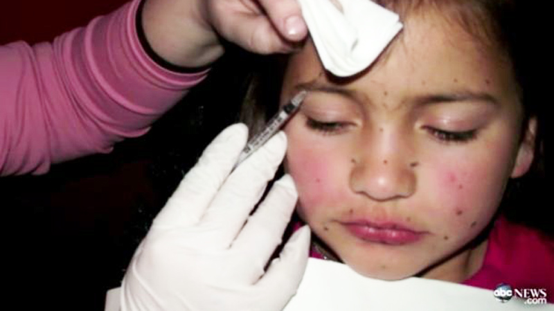 Matka wstrzykiwała botoks 8-letniej córce! Podobno dzięki temu dziewczynka lepiej prezentowała się w konkursach piękności