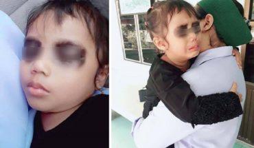 Dziewczynka zalała się łzami, gdy zobaczyła swe oczy. Głupi kawał rodziców kopiują inni
