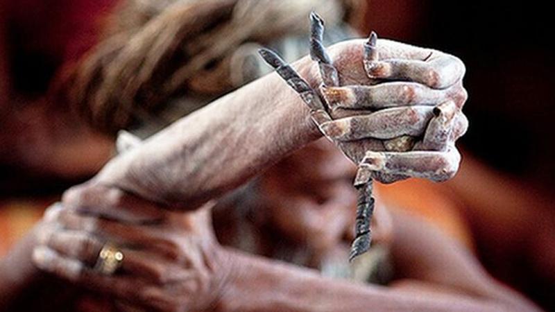 Ręka oddana bogu! Tak wygląda wierzący, który poświęcił swoje ciało, by zmienić świat