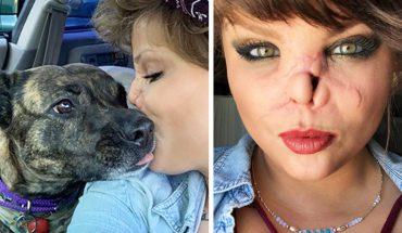 Pitbull rozszarpał jej pół twarzy! Kobieta wybaczyła psu i twierdzi, że teraz jest bardziej pewna siebie