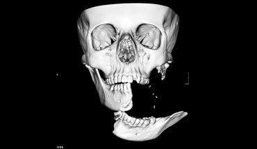 Połowa jej szczęki wisiała na 1-centymetrowym kawałku skóry! Chirurg widział takie obrażenia jedynie na wojnie