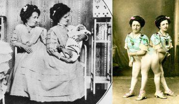 """Jedna z bliźniaczek syjamskich urodziła dziecko! Oto jak radziły sobie """"dwie matki jednego syna"""""""