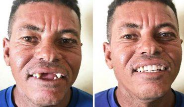 Ten dentysta leczy zęby biednych ludzi za darmo! Metamorfozy zwalają z nóg