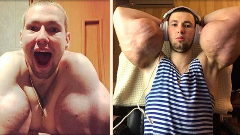 """""""Rosyjski Popeye"""" robi zrzutkę na ratowanie bicepsów. Woli żebrać niż pracować"""